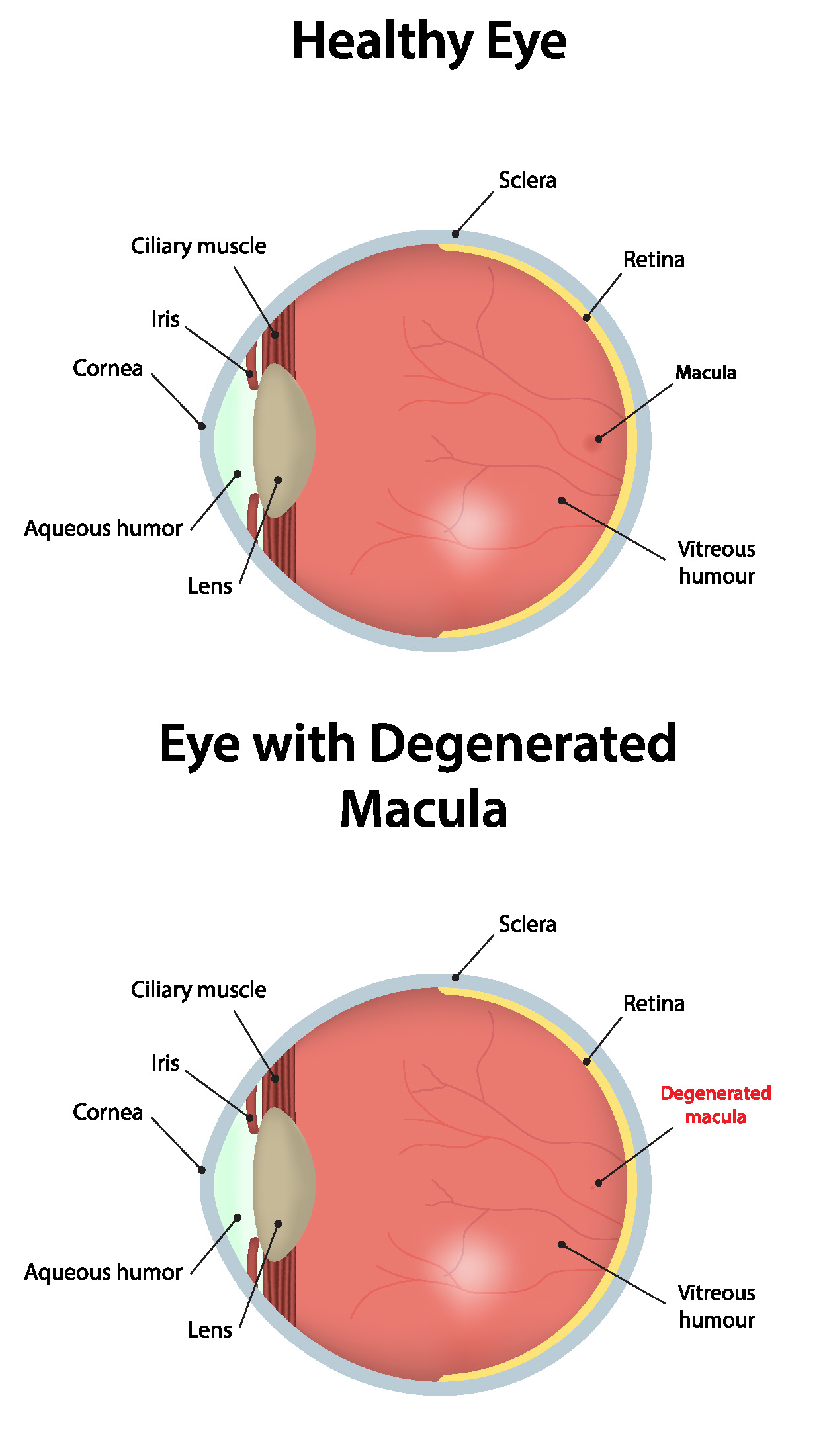 Macular Degeneration Eye Comparison