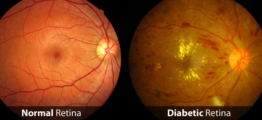 Normal and Diabetic Retina Comparison